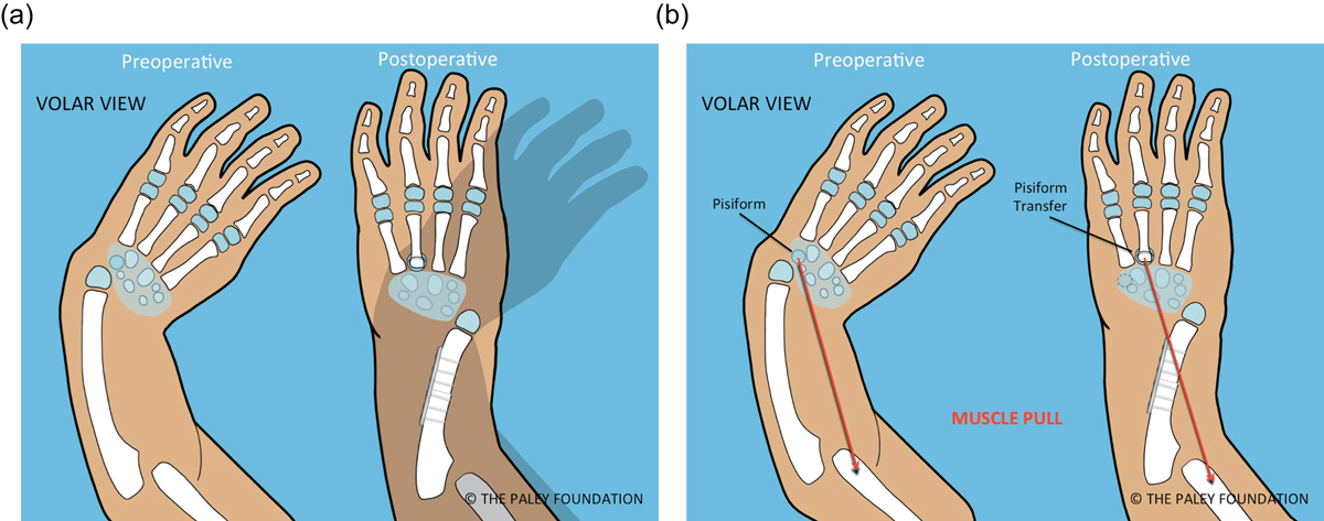 The Paley ulnarization of the carpus with ulnar shortening osteotomy ...